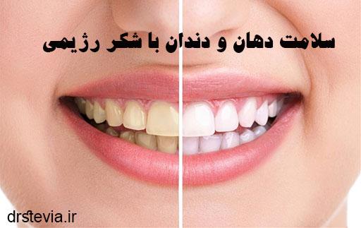 سلامت دهان و دندان با شکر رژیمی
